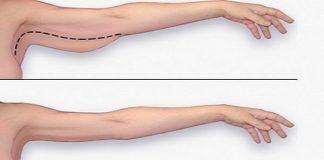 Лучшие упражнения для «обезжиривания» рук дома