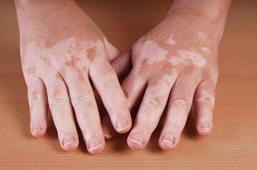 Vitiligo için 5 Ev Yapımı Tedavi