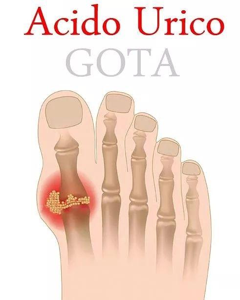 ¿QUÉ SON LOS CRISTALES DE ÁCIDO ÚRICO?  Los cristales de ácido úrico se originan cuando el cuerpo tiene dificultades para eliminar esta sustancia o la está produciendo en grandes cantidades.  Al quedarse retenida aparece una afección conocida como gota, la cual genera un intenso dolor e inflamación en las articulaciones.  Las partes del cuerpo más afectadas incluyen:  - Los dedos del pie. - Los tobillos. - Los pies en general. - Las manos.  https://www.facebook.com/GotaAcidoUrico/