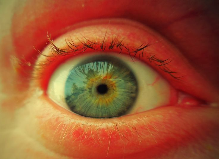 Zsolti - right eye with toy camera effect
