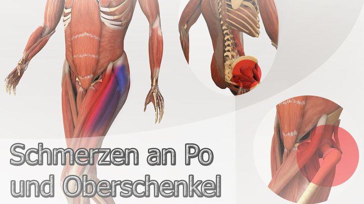 Schmerzen an Po und Oberschenkel - InGAsys - Intelligente Ganganalyse So...