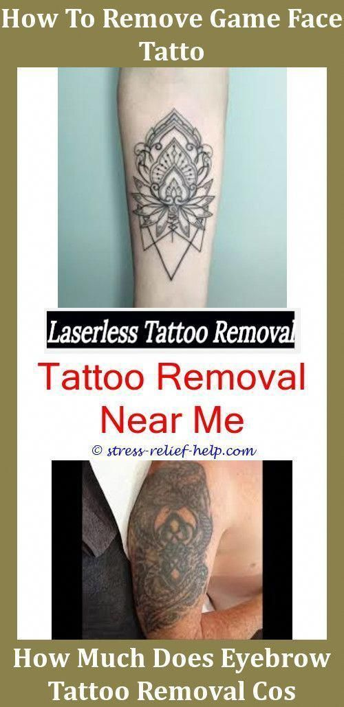 Tattoo Machines How To Remove Tattoo Faster Can You Use Bleach To ...