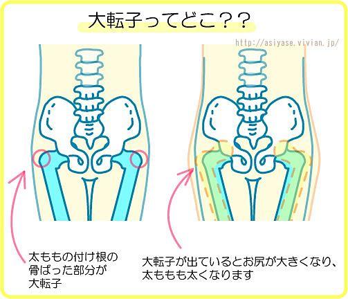 下半身が痩せない。あなたのお悩みの原因は「大転子」でした|MERY [メリー] http://mery.jp/106140 #MERY http://mery.jp/106140