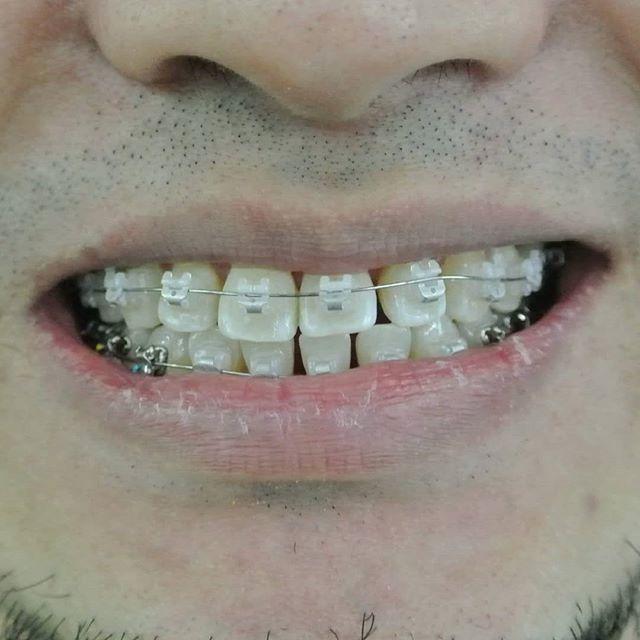 Mejores 89 imgenes de shah alam dentist en pinterest nak pakai braces tapi tak nak yg nampak besi jom try ceramic braces orthodontics solutioingenieria Choice Image