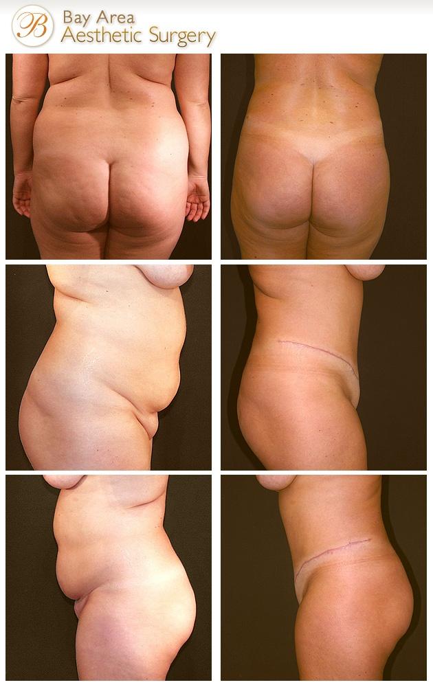 ultra tone weight loss