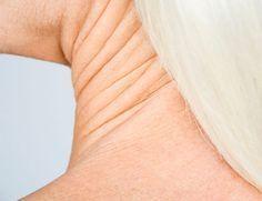 Убираем дряблость кожи: натуральные средства для повышения эластичности кожи