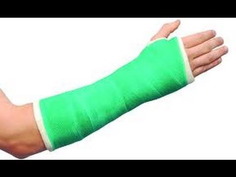 how to make a fake arm cast 2 youtube cool in 2018