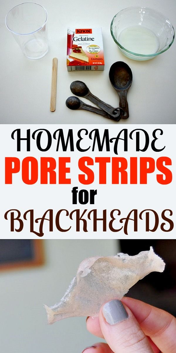 Do you struggle with the blackheads on your nose and chin? Well, they are indeed very annoying. Here is a homemade recipe to remove those little dots from the root. This is a very easy and cheap DIY pore strip that doesn't come in sizes or shapes but which you can size and shape to …