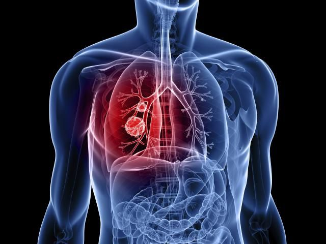 Non-small cell lung cancer is the most common form of lung cancer. What types of lung cancer are non-small cell, what are symptoms and treatment?