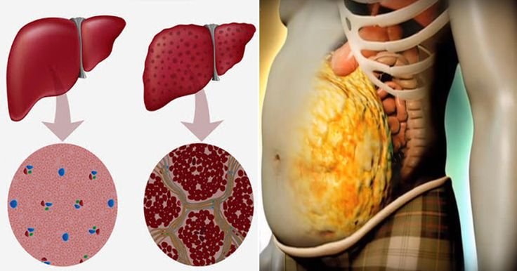 How To Unclog And Detox Your Stressed-Out Liver In Just 72 Hours - This will give you amazing results.
