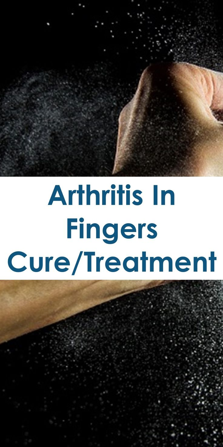 Sufferers wear copper jewelry in the hopes of easing symptoms - 13 Natural Home Remedies For Fast Arthritis And Joint Pain Relief