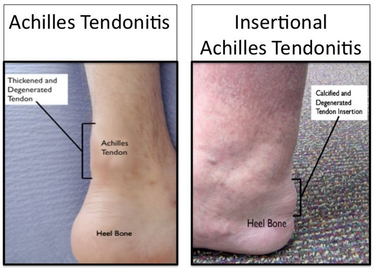 Best Shoes For Achilles Tendon Problems