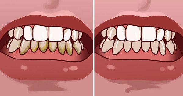 Comment enlever le tartre des dents naturellement à la maison