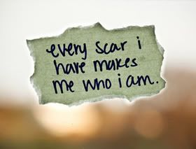ms multiple sclerosis my scars