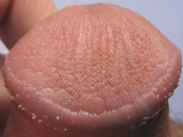 Bumps On The Penis Head