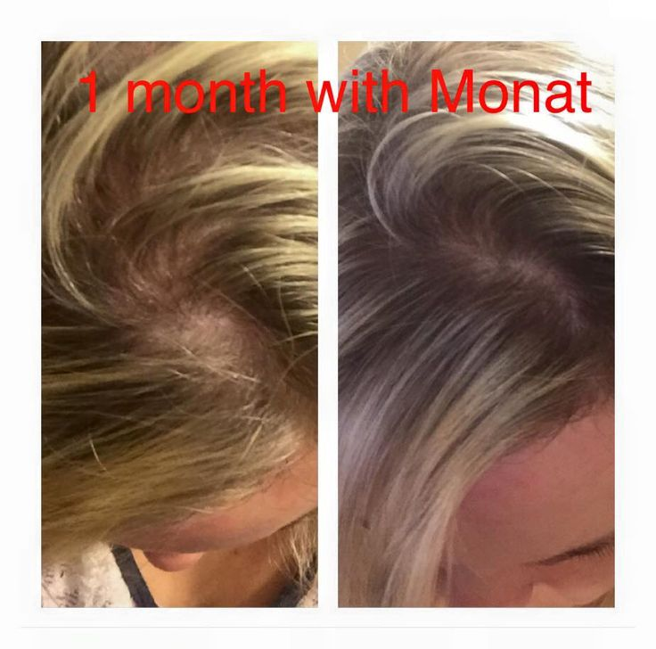Dean Larra S Before And After With Monat Contact Me For A