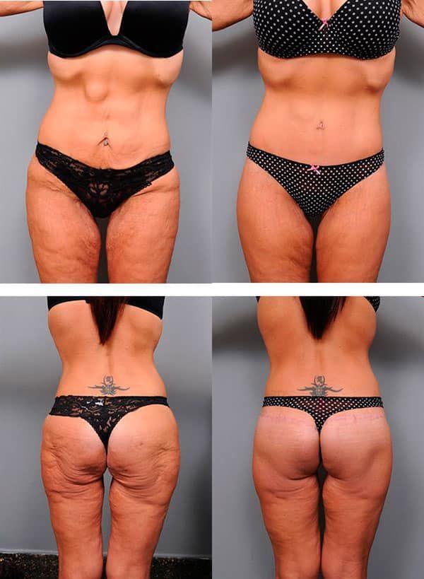 что делать если при похудении обвисает живот