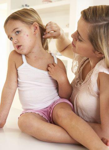 Los primeros síntomas del sarampión en los bebés y en los niños son catarro nasal (goteo de nariz), ojos llorosos o conjuntivitis, tos seca, fiebre, falta de apetito y malestar general.