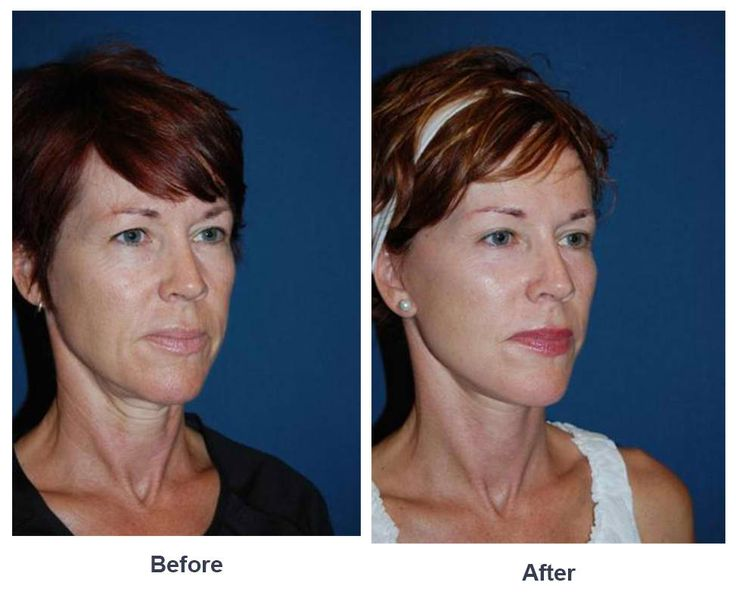 Procedures Performed: Endoscopic Brow Lift: 3/4 Brow lift Eyelid: Lower Lid Blepharoplasty with SOOF Deep Plane Minituck CO2 Laser Resurfacing: eyes and mouth Dr. Freeman's Makeovers