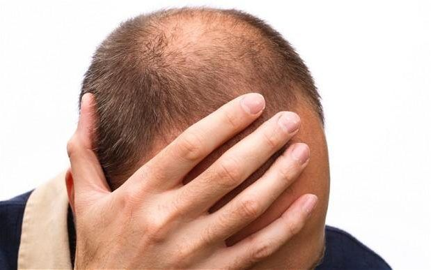 According to U.S. #National Library of Medicine (NLM), #more than 50% of the men after the age of 50 become the victims of #male #pattern #baldness.