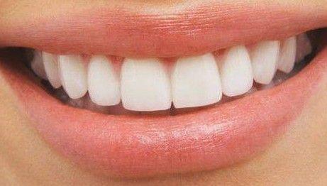 Astuce Surprenante : Comment Détartrez vos dents au naturel à la Maison!