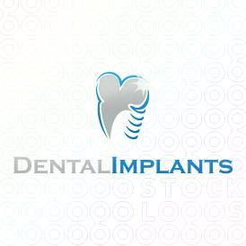 Dental Logo Design of a tooth with a screw for implants For Sale On StockLogos | Dental Implants logo