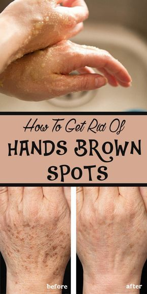 how to get rid of brown spots on body