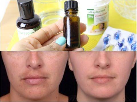 Sérum caseiro de vitamina C que aumenta a produção de COLAGENO e CLAREIA PELE - YouTube