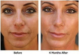 Pin By Dr Paul Nassif On Rhinoplasty Before Amp After