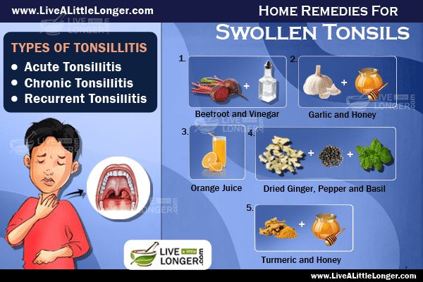home remedies to shrink enlarged adenoids Home remedies diet and nutrition  it works well in enlarged adenoids with  homeopathic treatment for adenoids homeopathic.