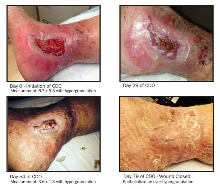 Image Gallery healing a leg ulcer