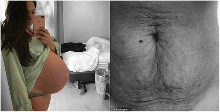 Fisiologia da maternidade: 'sinto orgulho do meu corpo' diz mãe