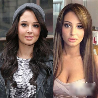 10 Best Images About Nose Job On Pinterest Rhinoplasty