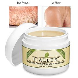 This stuff REALLY works! Callex Ointment, Dry Foot Repair, Baby Soft Feet Cream | Solutions Walgreens