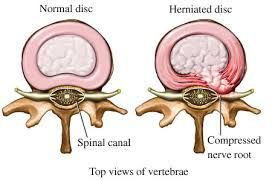 Your spine is a column of 33 bones called vertebrae. Small, round, flat and spongy discs are positioned between most of your vertebrae. These discs act as shock absorbers and keep your spine healthy and flexible. If one of these discs becomes damaged, it may bulge out or break open. When this happens, it is called a spinal disc herniation and commonly referred to as a slipped disc, herniated disc or ruptured disc.- http://www.familychiropractic.com.sg/