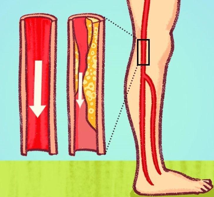 7 Señales Peligrosas De Arterias Obstruidas Que A Menudo Ignoramos Salud Y Consejos Dolor De Pantorrillas Arterias Carótidas Dolor De Piernas