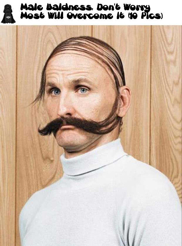 Male Baldness, Do not Worry Most Will Overcome It (10 Pics)!