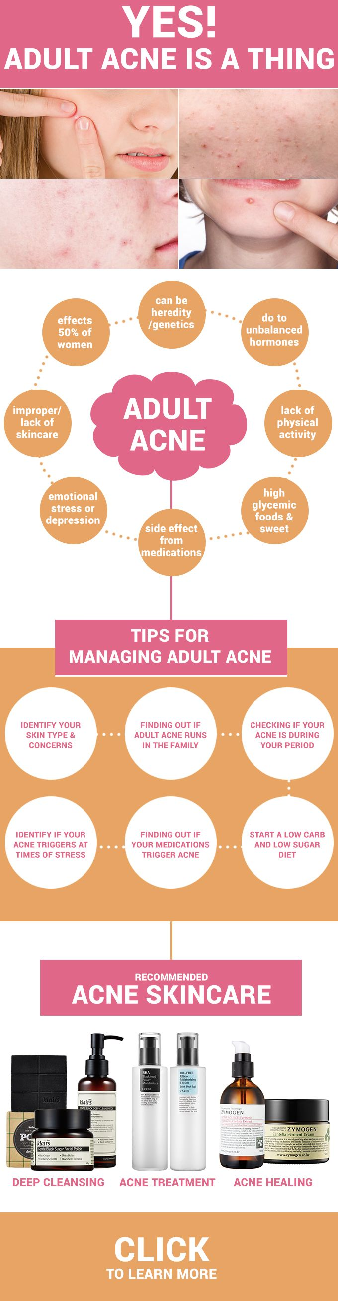Yes, Adult Acne Is A Thing