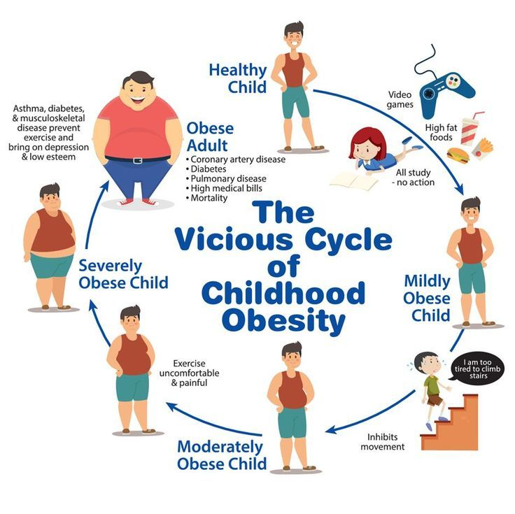 Childhood Obesity Facts- What is it? How does it affect children socially,  physi...- JFA UNIj...   Childhood obesity facts, Obesity facts, Obesity  awareness