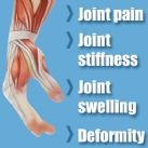 Symptoms of arthritis in fingers