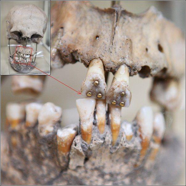 🤔Каким же инструментом древние индейцы делали отверстия в зубах для украшений? А историки утверждают, что индейцы не знали колеса. ____________________ #стоматология #историястоматологии #историямедицины #медицина #палеонтология #зубы #промбы #кариес #красота