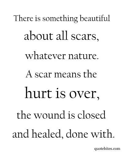 I use this with my trauma work with patients-wounds hurt right when they happen, you apply bandage for temp healing/relief, it scabs, the scab gets ripped off-hurts again (say something reminds you of this event/person etc)...eventually it's a scar with you forever-always a part of you- but not as painful as they day it happened!