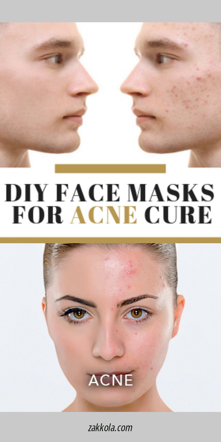 Read Information On Acne Please Click Here For More Information Acne Remedies Skin Care Treatments Home Remedies For Acne