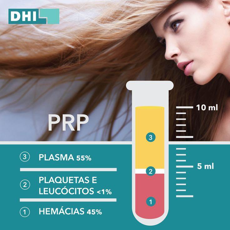 Tratamento Capilar de PRP