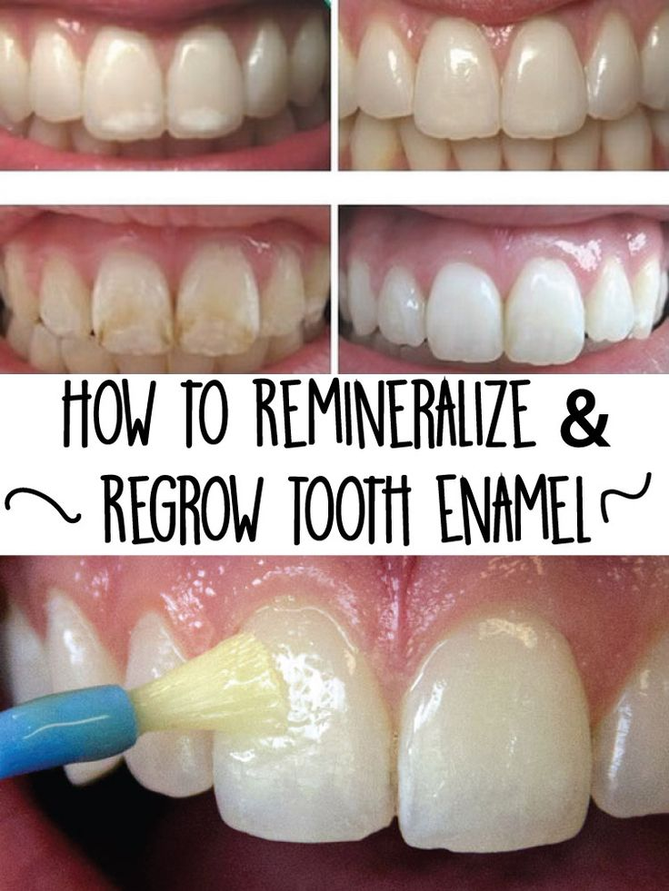 How to Remineralize & Regrow Tooth Enamel repin & like. Check out Noelito Flow music. #Noel. Thanks https://www.twitter.com/noelitoflow https://www.youtube.com/user/Noelitoflow