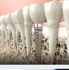 """BONE GRAFTING FOR IMPLANTS  """"After tooth extraction, if the walls of the socket are very thick, they will usually fill naturally with bone in two to three months. However, when the walls of your socket are very thin, this type of healing will not be as predictable. A bone graft is often placed at the time of tooth extraction to help your body fill the empty socket with bone."""" Nottingham Oral Surgery"""