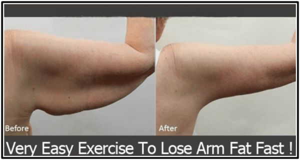 Deposition in the arm area causes arm fat. It is quite difficult to get rid of the fat in this area. Gradual deposition leads to flabby arms. As we grow older our body stores more fat in different …