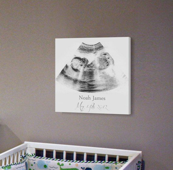 Sonogram Print Nursery Wall Art A Personalized by CanvasVows Would love to do this for all our babies