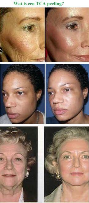 Trichloorazijnzuur peelings zijn iets diepere peelings. Ze geven een mooiere, frissere en egalere teint aan de huid. Ze worden gebruikt voor de behandeling van bruine vlekken en fijne huidrimpels. De sterkte van de peeling wordt aangepast aan de huiddikte. Deze peeling kan worden toegepast bij beginnende fijne rimpels, oppervlakkige acne littekens, door de zon ontstane pigmentvlekken en bij een huid met een grovere structuur. Diepere rimpels verdwijnen er niet door, maar het aanzien van uw…