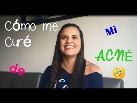 Mi historia con el Acné! - YouTube